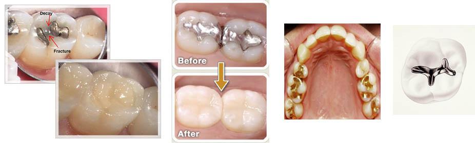 dental fillings, Importance of Dental Fillings