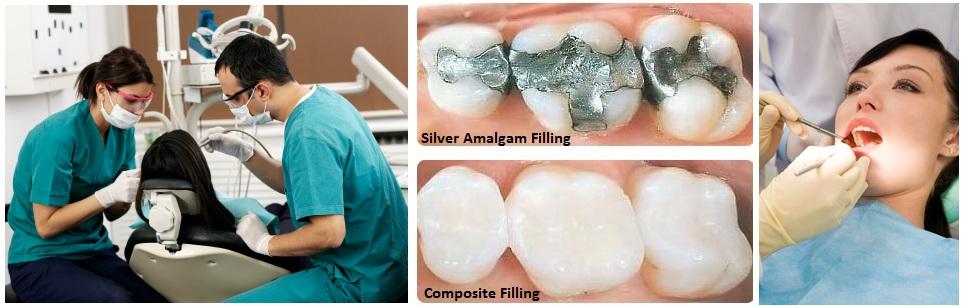 amalgam vs comosite -- cosmetic dentist Mississauga