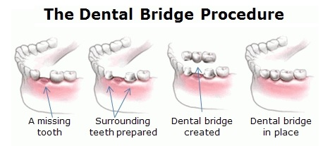 Dental Bridges -- dental implant Mississauga