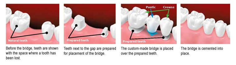 Fixed or Permanent Bridges -- dentist port credit