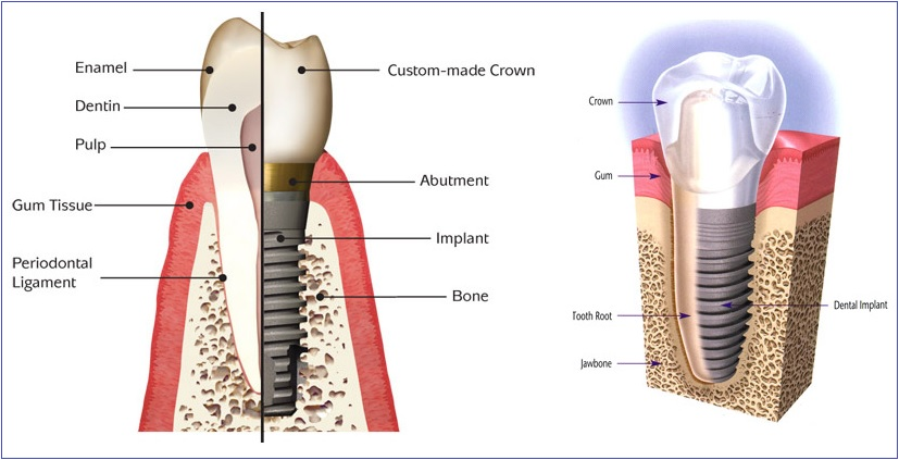 dental implant -- dental clinic Mississauga
