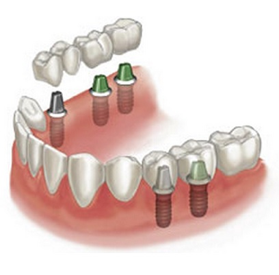dental implant -- dental clinic Missisauga