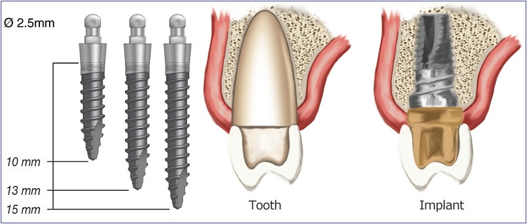 dental implants -- dental implant Mississauga