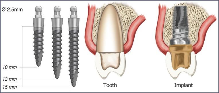 dental implants -- dental implant Mississauga