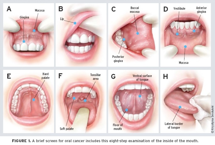 Oral Cancer Screening -- dental office Mississauga