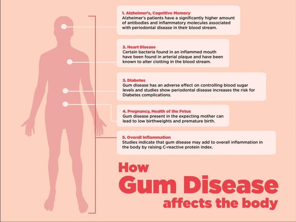 How Gum Disease Affects the Body -- dental clinic Mississauga