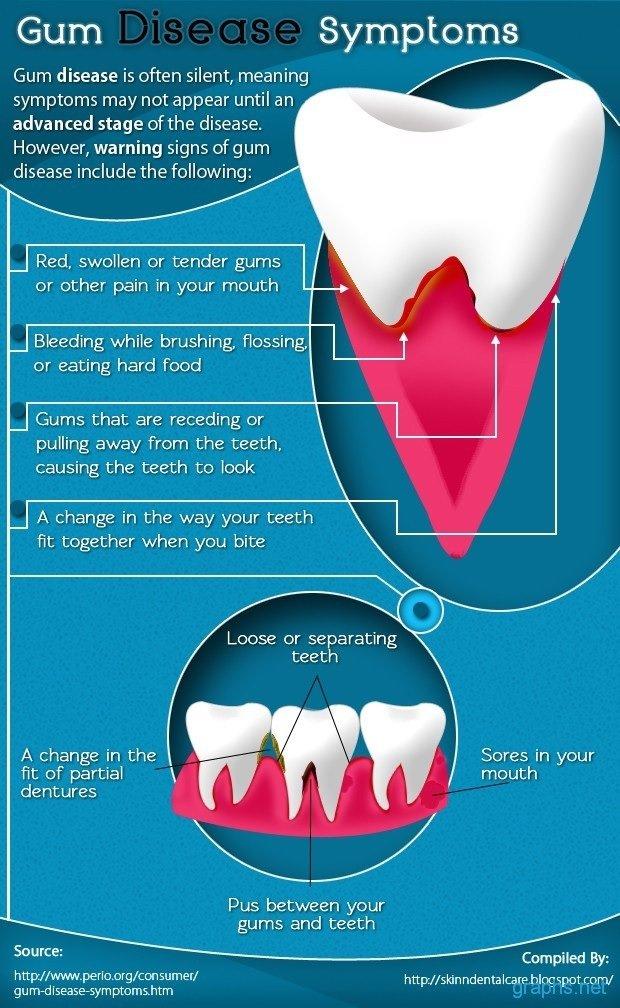gum disease symptoms -- dental clinic in Mississauga