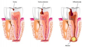 tooth decay -- dental clinic Mississauga
