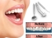 Dental Reshaping -- cosmetic dentistry Mississauga