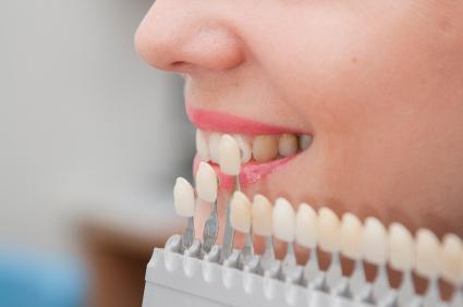 dental veneers mississauga