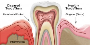 periodontal gum vs. healthy gum