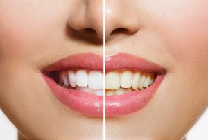 tooth discolouration treatment mississauga