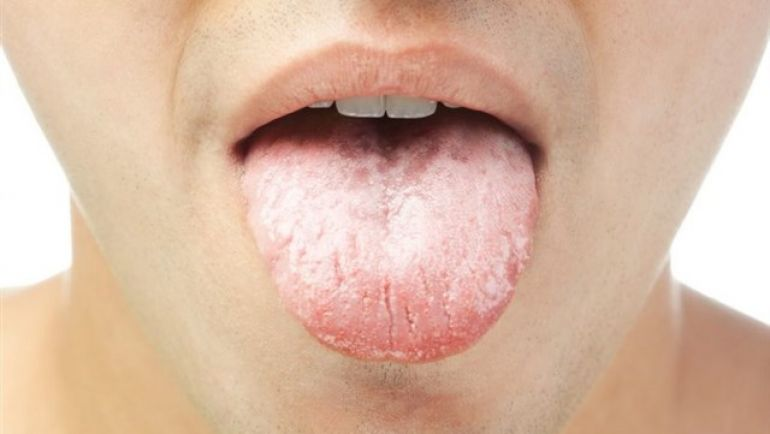 Dry Mouth: Causes, Symptoms, Prevention and Treatment