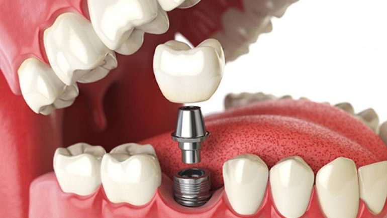 What Is a Dental Implant and How Does It Work?