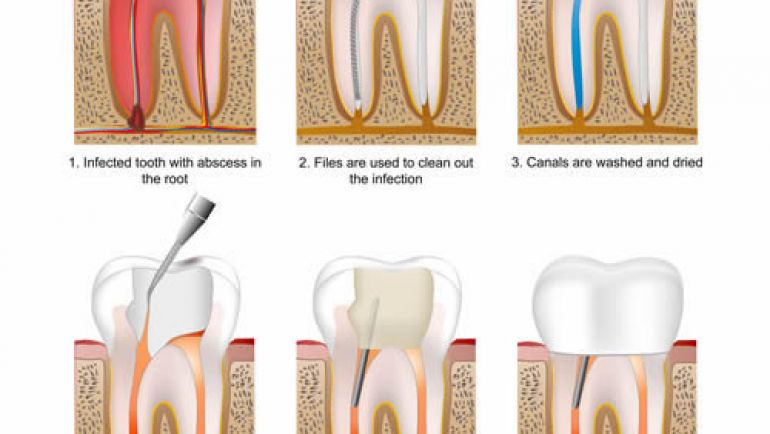 St Lawrence Dentistry provides root canal treatment or 'endodontic therapy'
