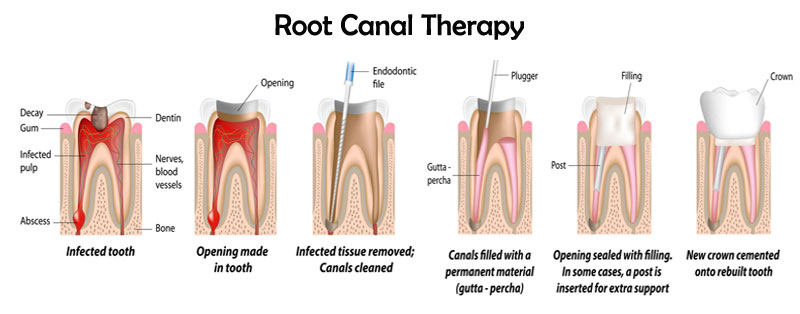 root canal therapy mississauga