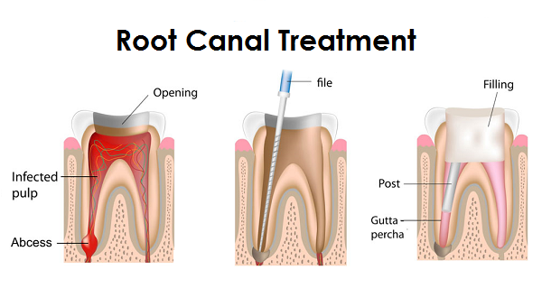 root canal treatment port credit
