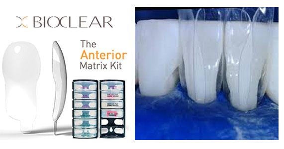 bioclear matrix