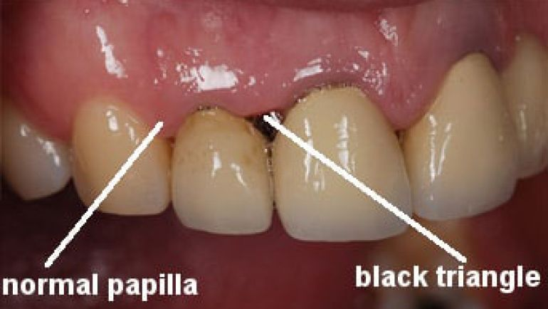 Esthetic Treatment of Dental Black Triangles