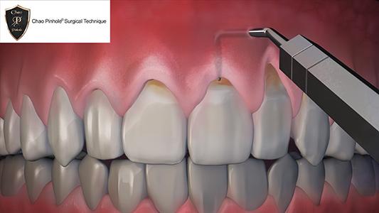 dental black triangles