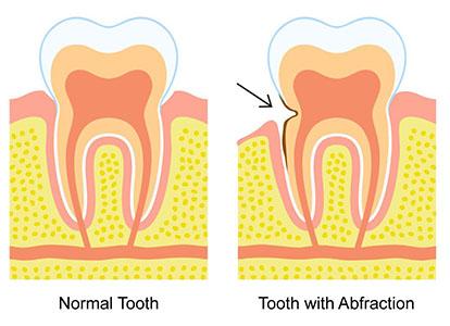 dental erosion treatment mississauga