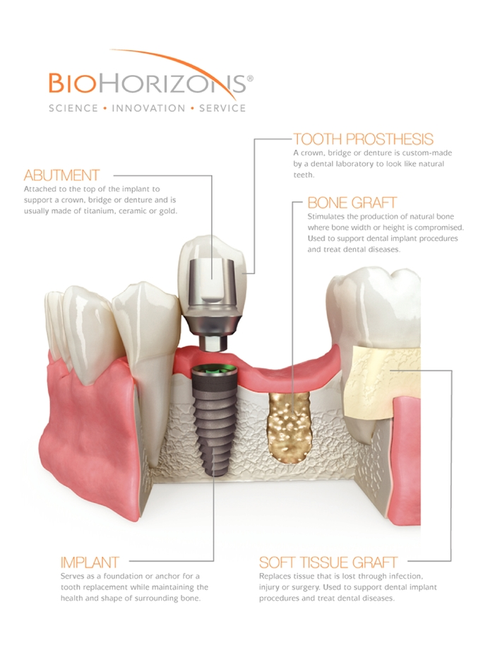 denture implants
