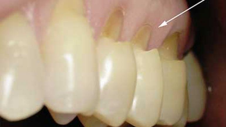 Treatment of Dental Erosion