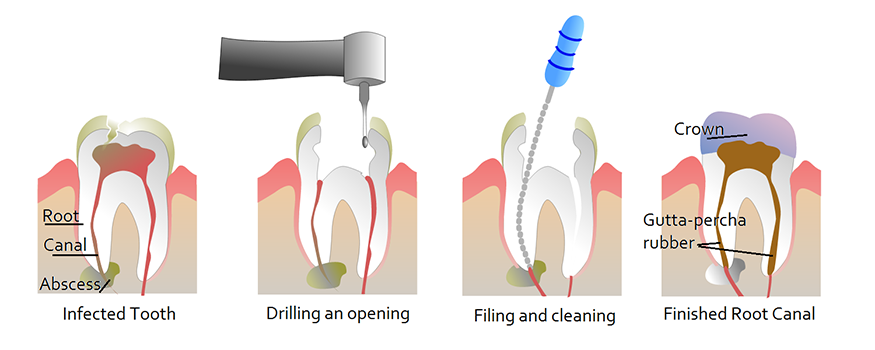 root canal treatment st lawrence dentistry