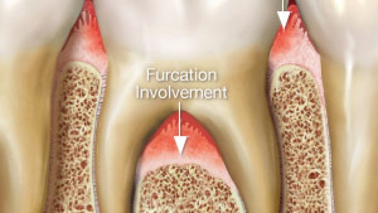 Furcation Defect Treatment