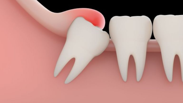 Wisdom Teeth – Do they need to be removed?