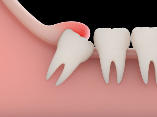 Eruzione ed estrazione dente del giudizio e