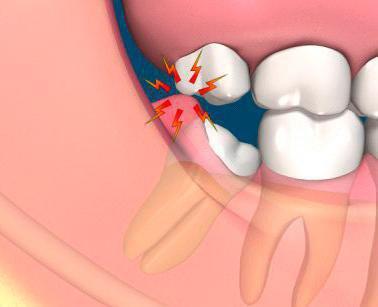 erupting wisdom tooth