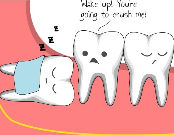 wisdom teeth extraction mississauga