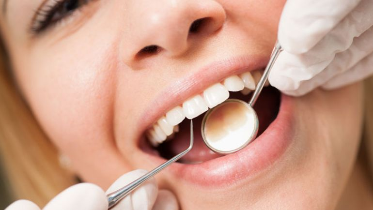 Efficacy of Dental Cleanings