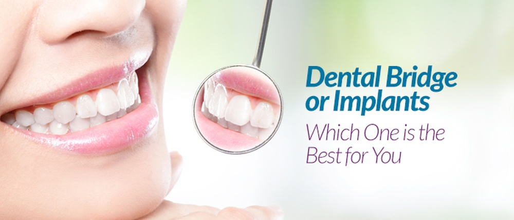 dental implants bridges