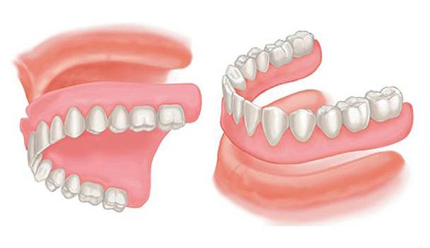 complete dentures mississauga