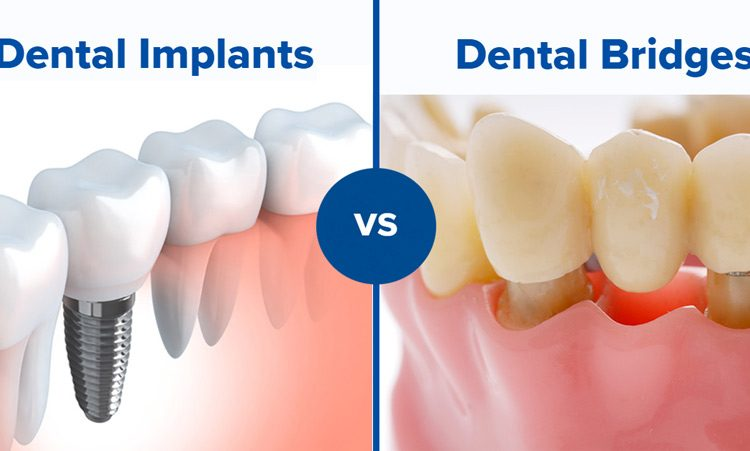 dental bridges vs dental implants