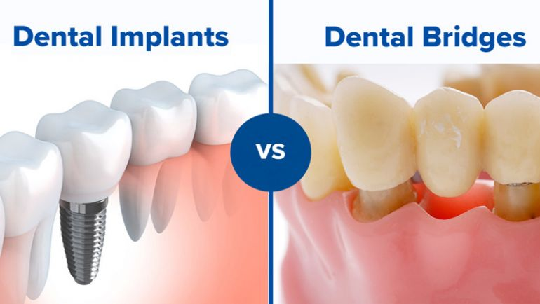 Choosing between Dental Implants or Bridge Treatment