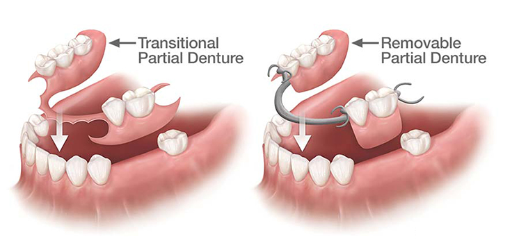 partial dentures mississauga
