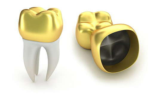 Gold Crowns Mississauga On | St  Lawrence Dentistry