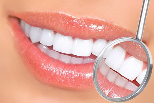 cosmetic porcelain veneers mississauga