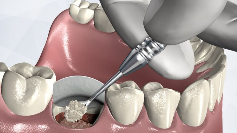 Dental Extraction Socket Preservation