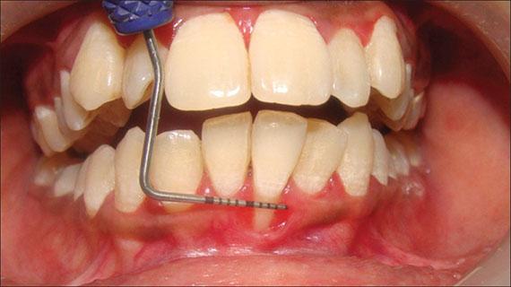 dental recession