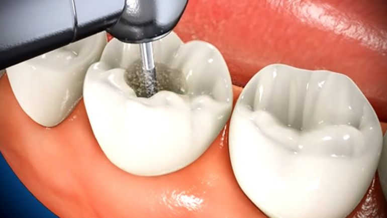 Root Canal Procedures Can Save Teeth