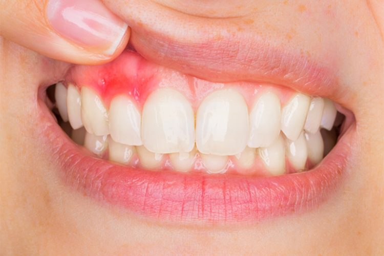 TRDEN gingivitis blogimage
