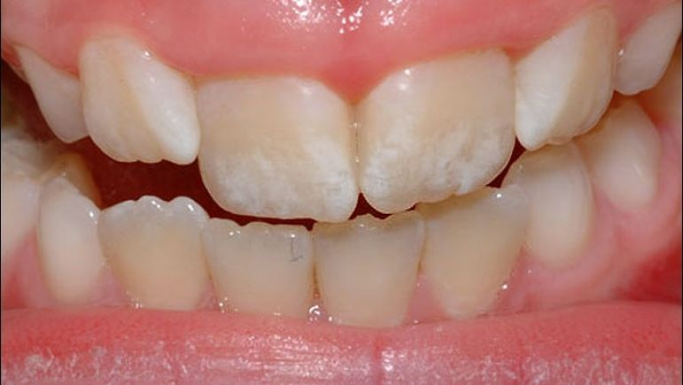 What is Fluorosis and How Do You Deal With It?