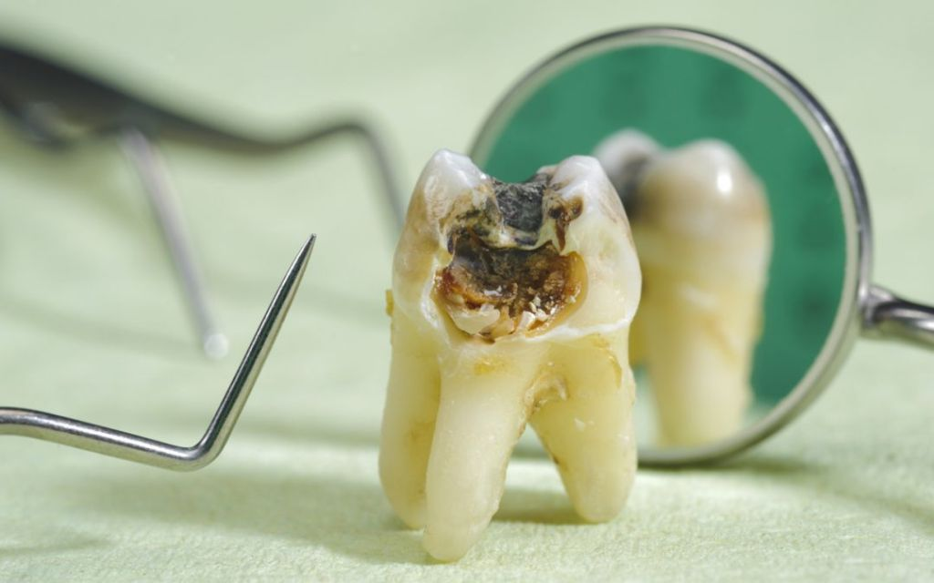Treatment Of Dead Tooth
