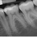 Calcified Canals and Root Canal Treatment