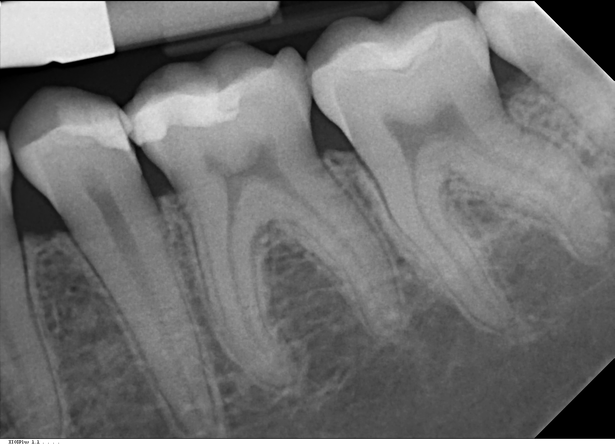 Calcified Canals and Root Canal Treatment | St  Lawrence