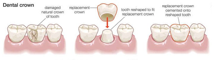 Root Canal Treatment Thru Dental Crowns | St  Lawrence Dentistry
